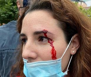Vox denuncia la pedrada a su diputada Rocío de Meer en un mitin en País Vasco y acusa a su gobierno de complice