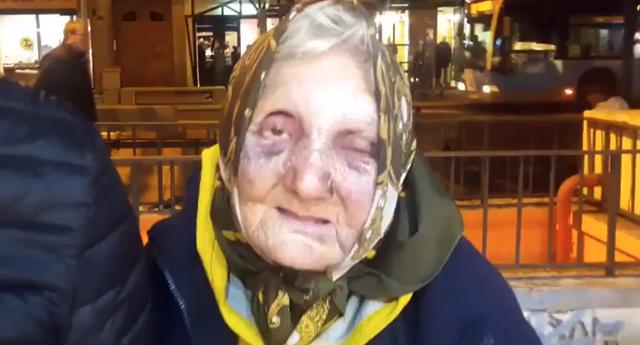 Un grupo de jóvenes agreden en Madrid a una anciana
