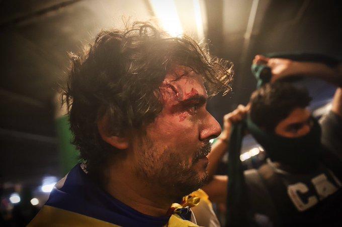 El joven que resultó herido por una pelota de goma en las cargas del Aeropuerto de El Prat, pierde el ojo