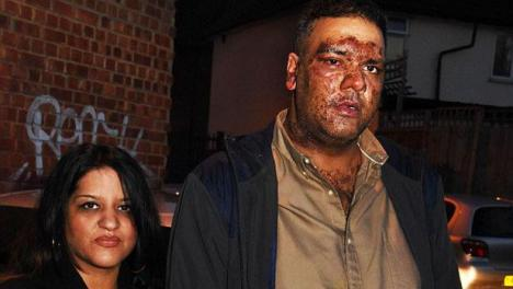 Atentado terrorista con ácido en Londres
