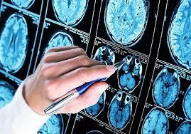 El alzhéimer podrá ser curado: Identificadas las células 'culpables' de la pérdida de memoria