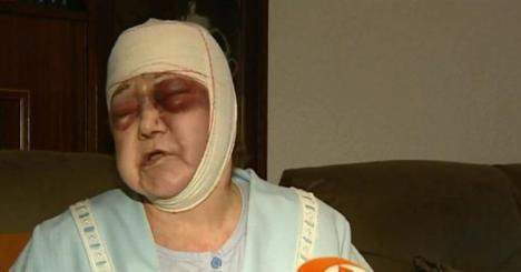 Un hombre con problemas psiquiátricos, asaltó en plena calle a una anciana de 91 años a la quecomenzó a golpear con una barra de hierro que sacó de un carrito