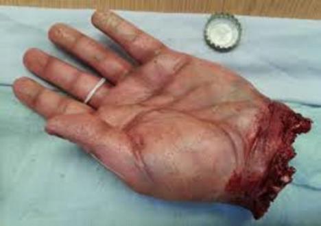 Pierde la mano durante una reyerta