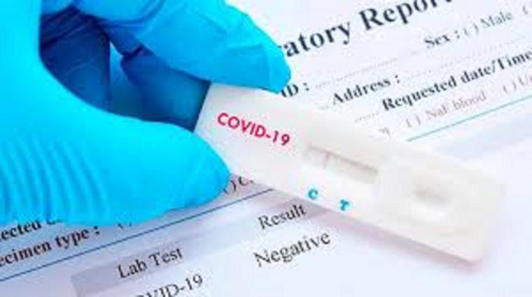 El Ministerio de Sanidad distribuye un millón de test de diagnóstico rápido entre las Comunidades Autónomas