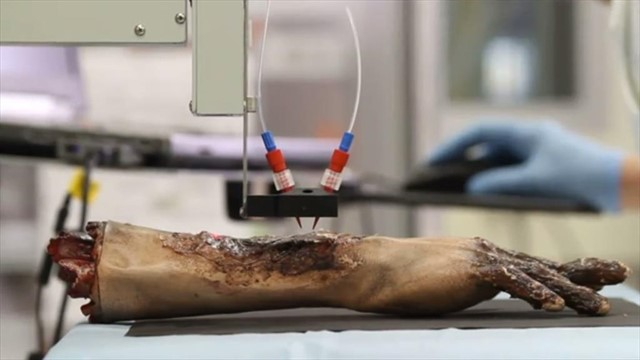 La impresora que imprime piel humana sobre una herida