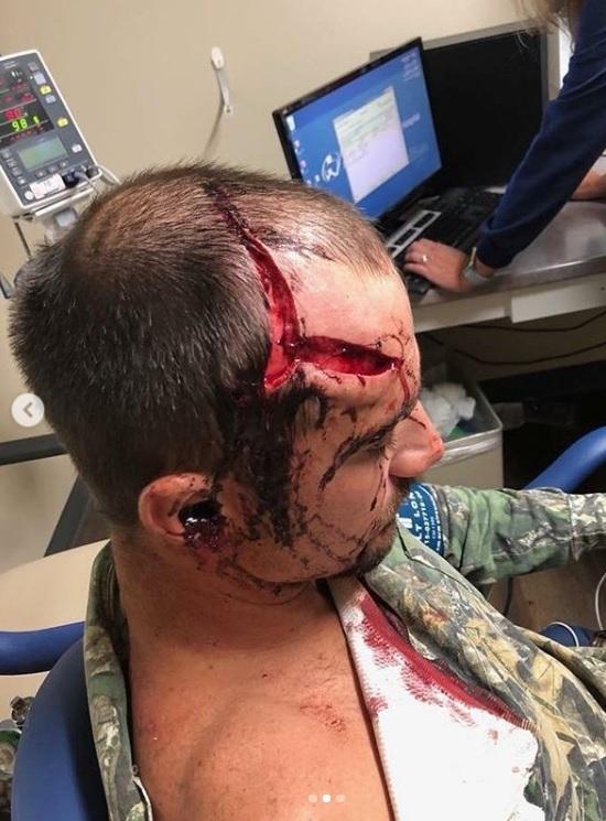 Un ciervo ataca al cazador que le había abatido