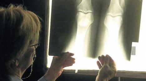 En pruebas un medicamento inyectable que regenera el cartílago de la rodilla en personas con osteoartritis