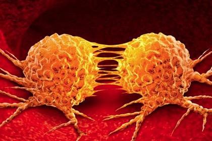 Investigadores españoles crean un fármaco que evita la metástasis y reduce el tamaño de los tumores